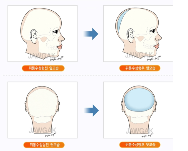 """Round Head"" Plastic Surgery Seems Excessive, Even for South Korea"