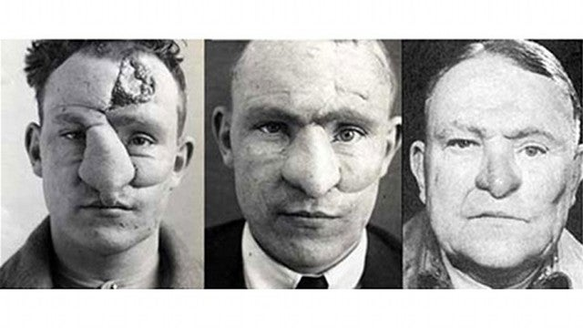 Pioneering WWI Plastic Surgery Was Way Ahead of Its Time