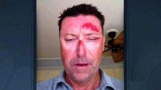 Robert Allenby Spent $3,400 At A Strip Club On Night Of Alleged Attack
