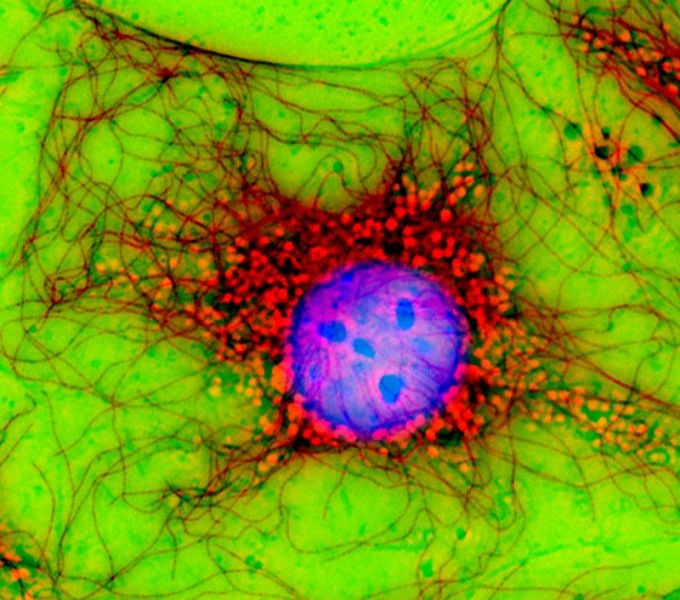 The Haunting Beauty At The Heart Of A Cell's Wounded Monolayer