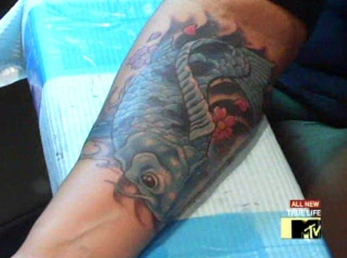 Think Before You Ink: The Painful Process Of Tattoo Removal
