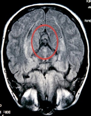 Woman Sees Virgin Mary In MRI • Science Says Sugar Is Addictive