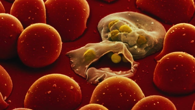 Sex evolved to prevent parasite infections, say scientists