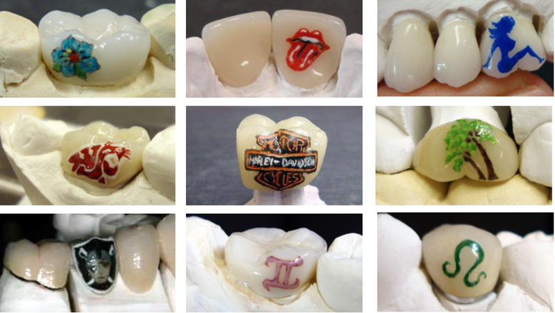 People Are Getting Tattoos on Their Teeth Now Because Why Not