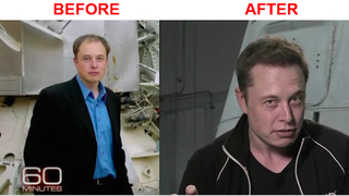 Elon Musk Turned Into Unwitting Hair Transplant Spokesmodel