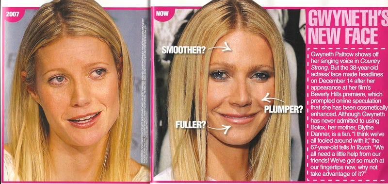 This Week In Tabloids: Heidi Montag Shows Us Her Scars
