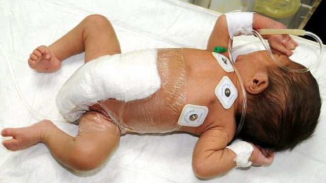 Pakistani baby born with six legs recovering well, following removal of extra limbs