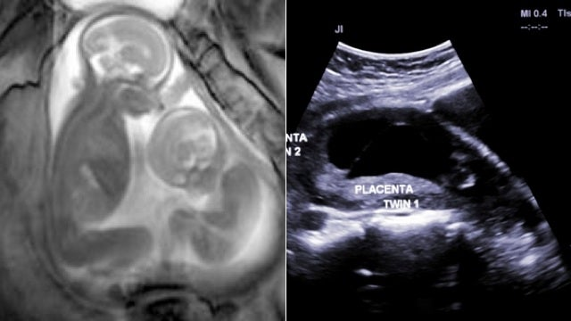 Video MRI Shows Unborn Twins in Incredible Detail