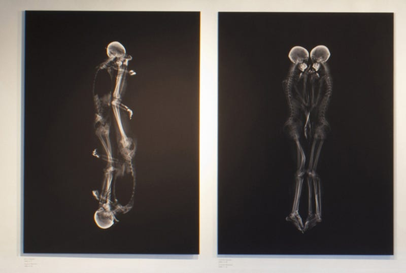 Cool X-Rays Show Couples Cuddling Like You've Never Seen Them Before
