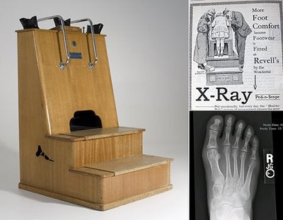 When X-rays were given in shoe stores