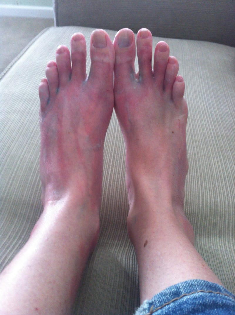 Ow! My Feet! Or, I Am an Idiot