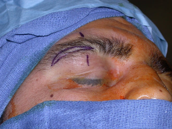 How MMA Fighters Use Plastic Surgery to Bleed Less