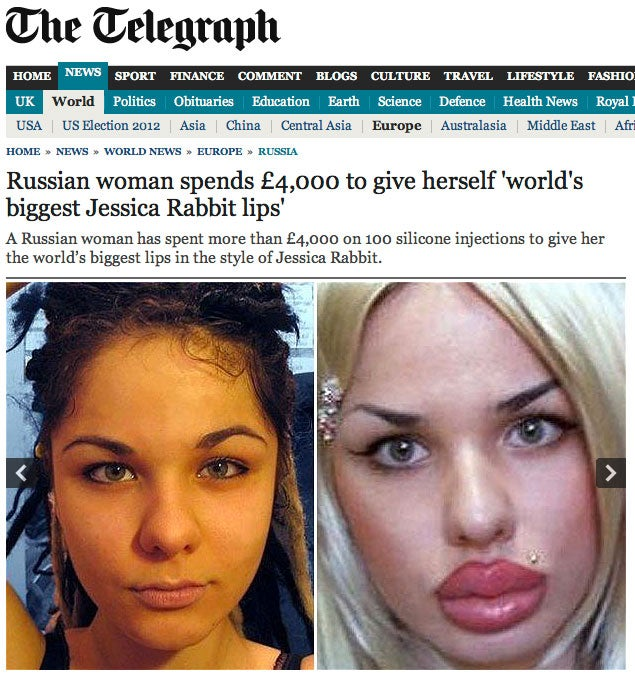 22-Year-Old Woman Spends $6K To Get Giant Jessica Rabbit Lips