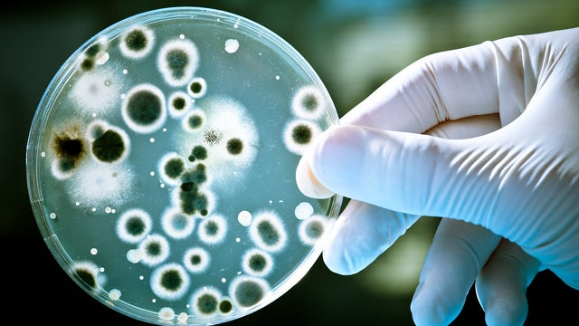 Researcher Killed By Deadly Bacteria He Was Working With