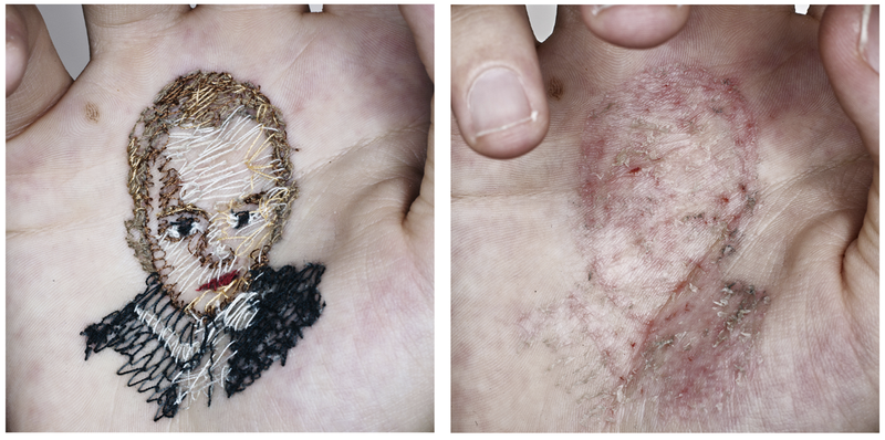 Artist embroiders portraits into his own flesh—and then tears them out