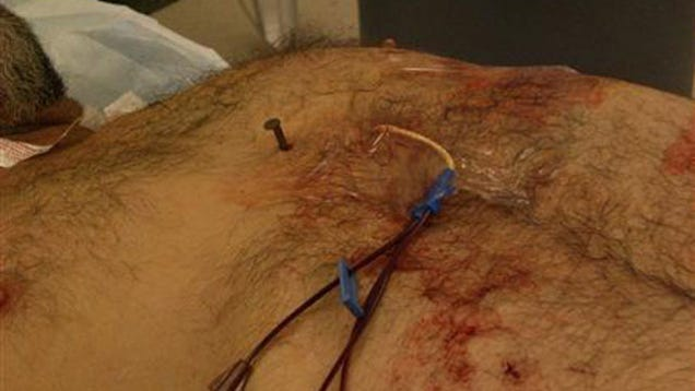 Man Survives Shooting Himself in the Heart with a Nail Gun (Warning: Graphic Imagery)