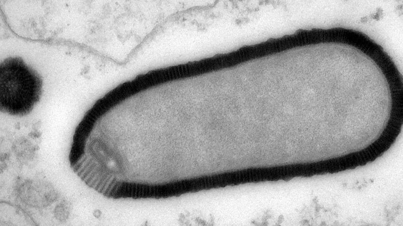 French Scientists Revive Enormous 30,000-Year-Old Virus Because Why Not