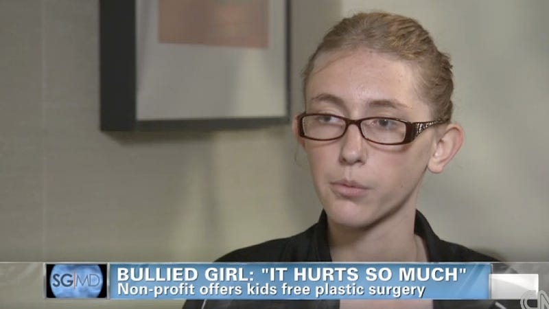 Bullied Girl Receives Free Plastic Surgery to Pin Her Ears, Is Heartbreakingly Thrilled