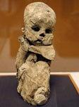 A mummified fetus inside mother