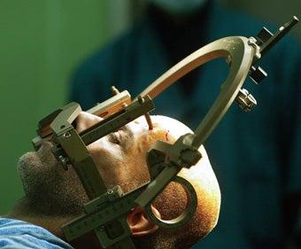Perfecting Closed-Skull Brain Surgery