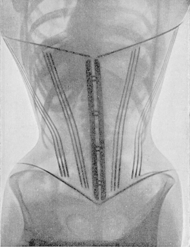 X-ray images of women in corsets show skeletons in a bind