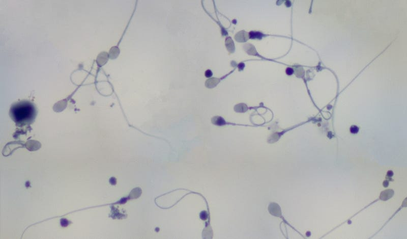 Scientists Have Created Spermlike Robots Called MagnetoSperm