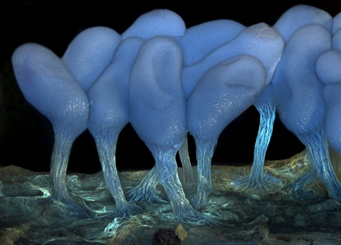 Parasites, deadly bugs and fungi are more beautiful than you could possibly imagine