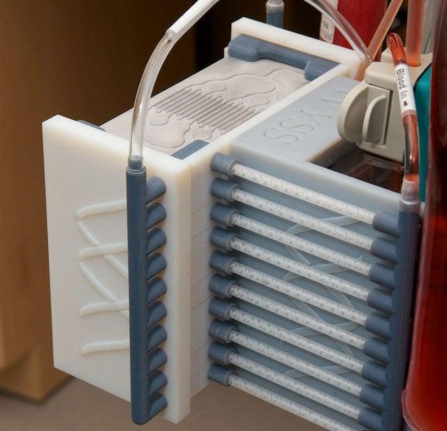 DARPA's Spleen-on-a-Chip Solves Sepsis