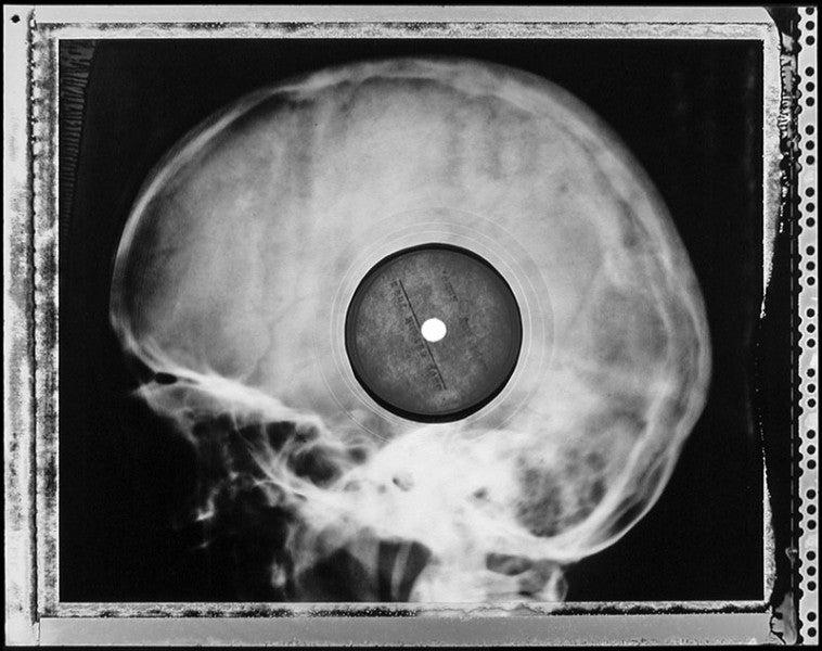 Micsoda punkság volt betiltott zenéket röntgenlemezeken terjeszteni!