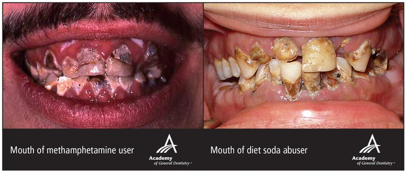 Your Diet Coke Habit Is Ruining Your Teeth as Badly as Meth or Crack