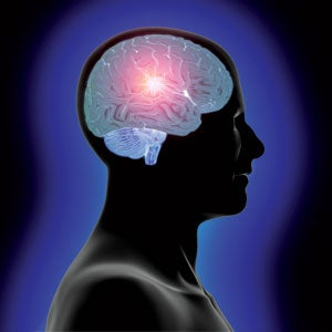 Brain Implants Instead of Prozac