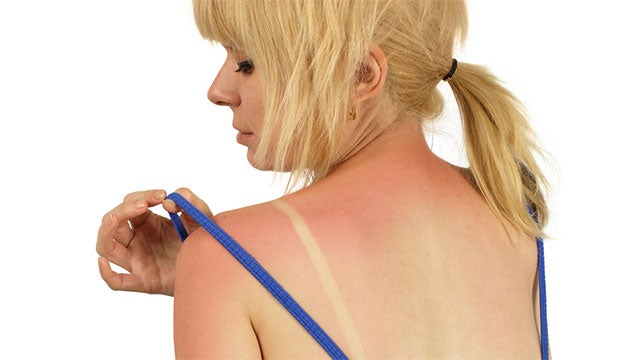 Someday You Could Say Goodbye To Sunburn Pain
