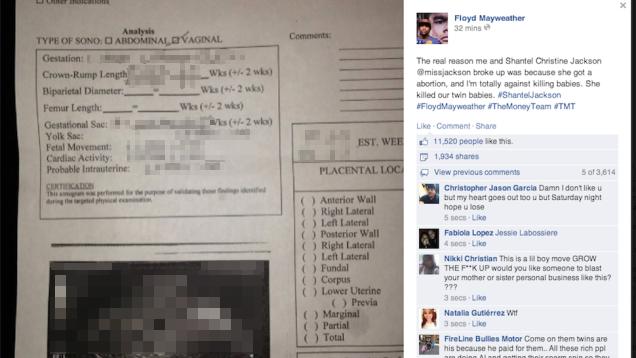 Floyd Mayweather Posts Ex's Sonogram, Accuses Her of 'Killing Babies'
