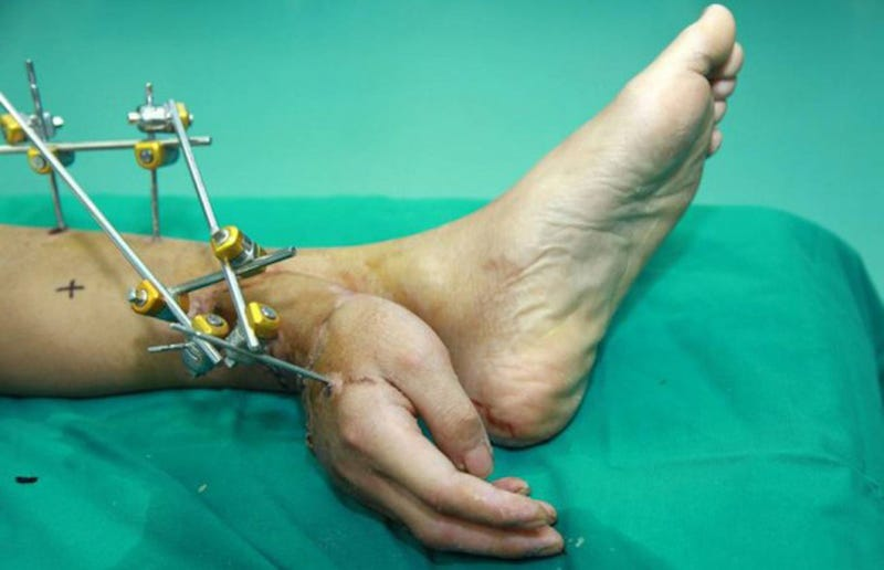 This man had his hand surgically attached to his ankle