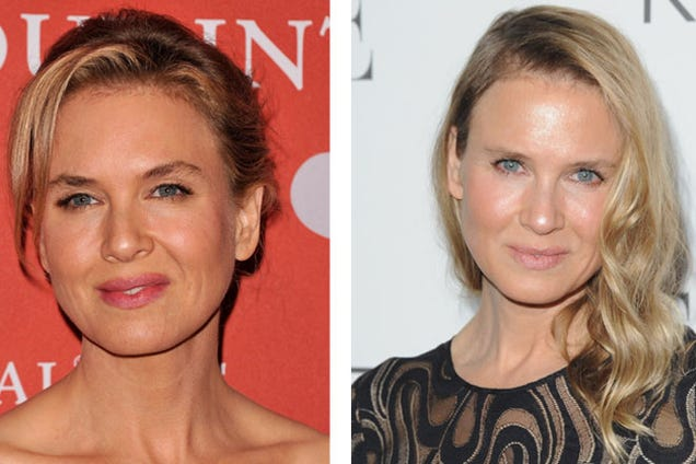 The Science Behind Renee Zellweger's New Face