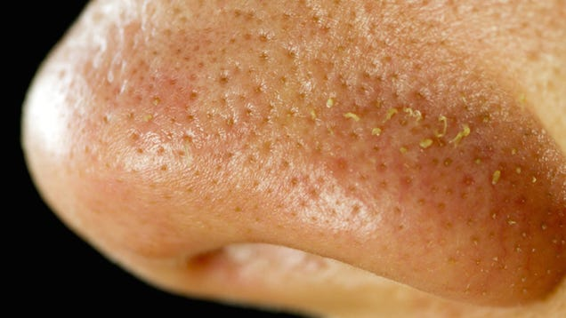 There Are Tiny Mites Living in Your Skin Pores and Fucking on Your Face