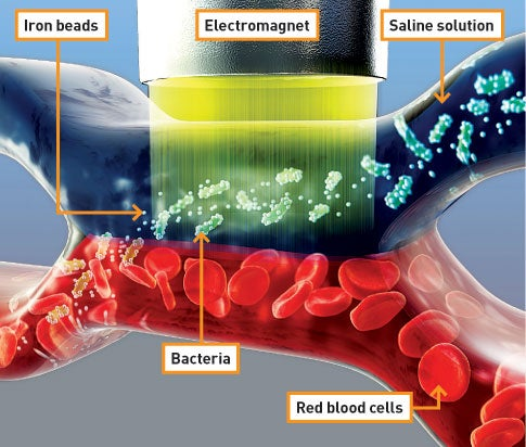 New Treatment Filters Bacteria From the Bloodstream with an Electromagnet