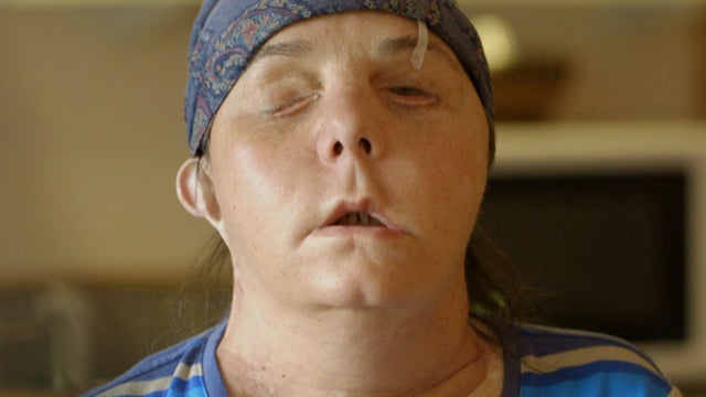 The story behind this woman's face transplant is simply incredible