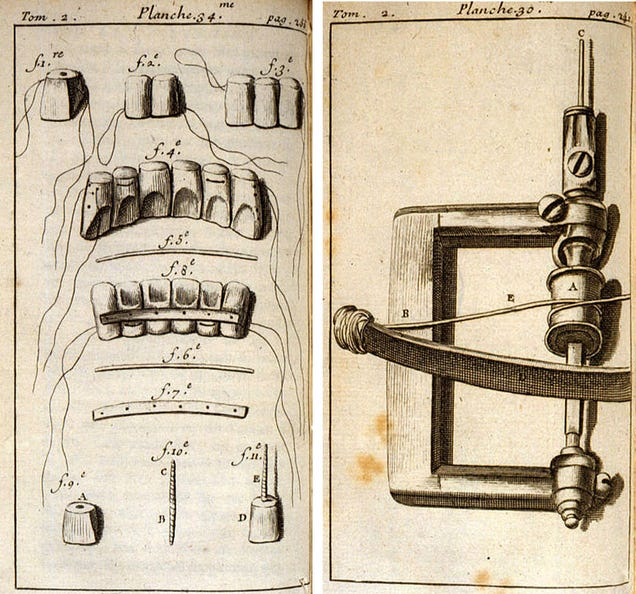 Bloodletting and Bone Brushes: The White-Knuckle Days of Early Dentistry