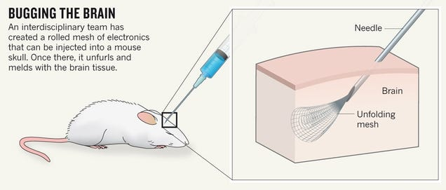 New Injectable Brain Implants Take Us One Step Closer To A Cyborg Future