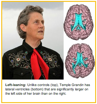 Temple Grandin has a brain like no one else's