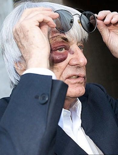 Shocking Photo Of Mugged F1 Boss