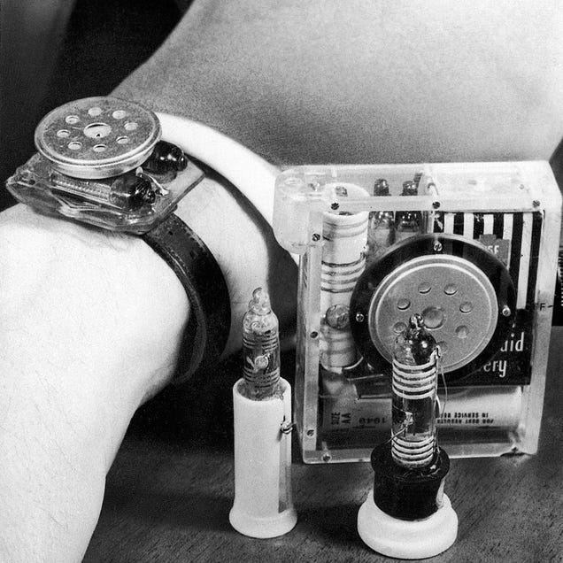 The Fantastic Vintage Wrist Gadgets That Came Way Before the Smartwatch