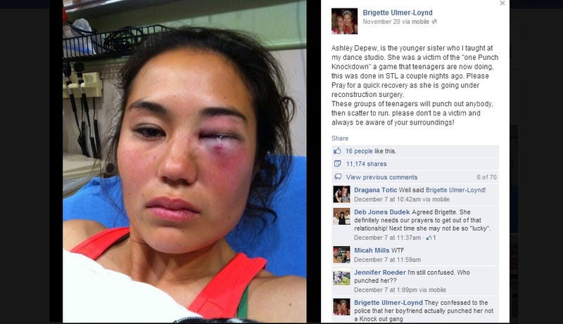Alleged Victim of 'Knockout Game' Was Actually Hit by Boyfriend