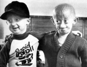 A Cure for Progeria, the Disease that Makes Children Die of Old Age