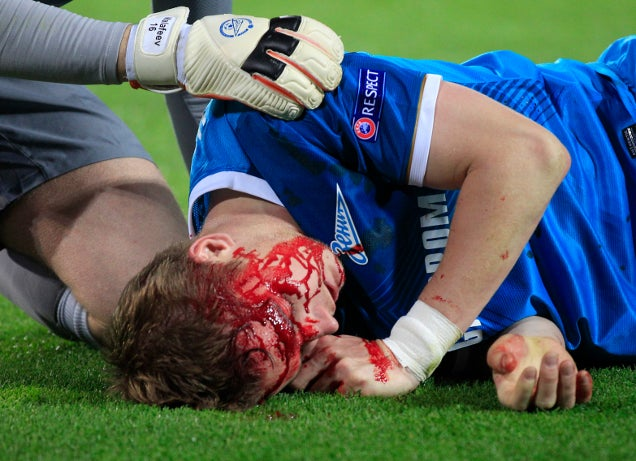 Zenit Player's Face Was A River Of Blood After Getting Kneed In Head