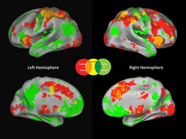 Brain Scans Reveal When Your Decisions Are Getting Risky