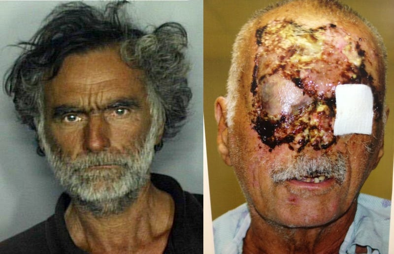 Post-Surgery Photo of 'Miami Zombie' Victim Released [Warning: Graphic]