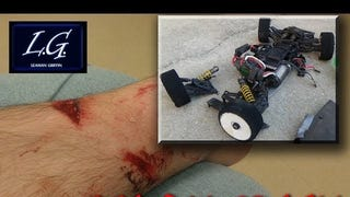 Ever wondered what its like to get hit by an RC car going 100mph