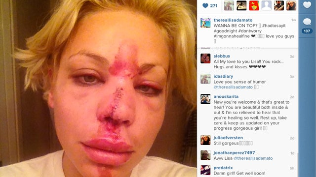 Former Top Model Contestant Busts Her Face Wide Open, Shares Horrifying Photos with the World